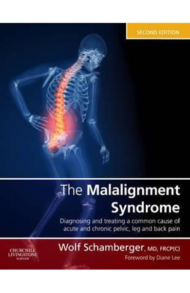 Malalignment Syndrome - Wolf Schamberger