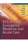 ECG in Emergency Medicine and Acute Care